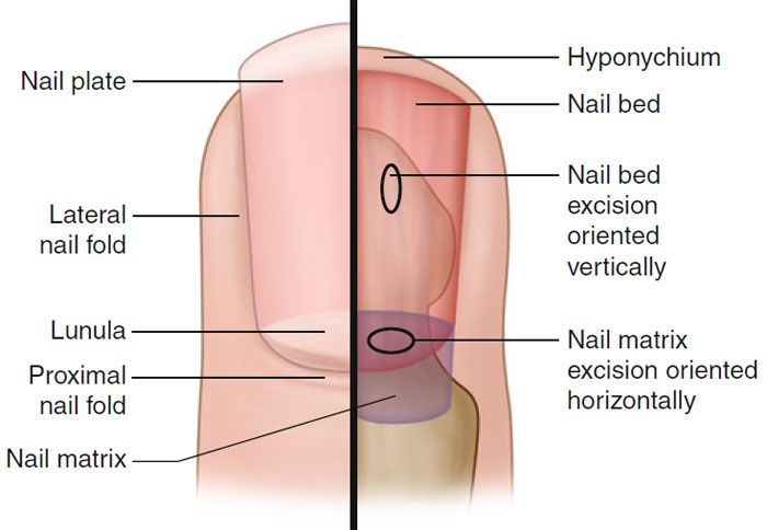Nails | Basic Science and Immunology